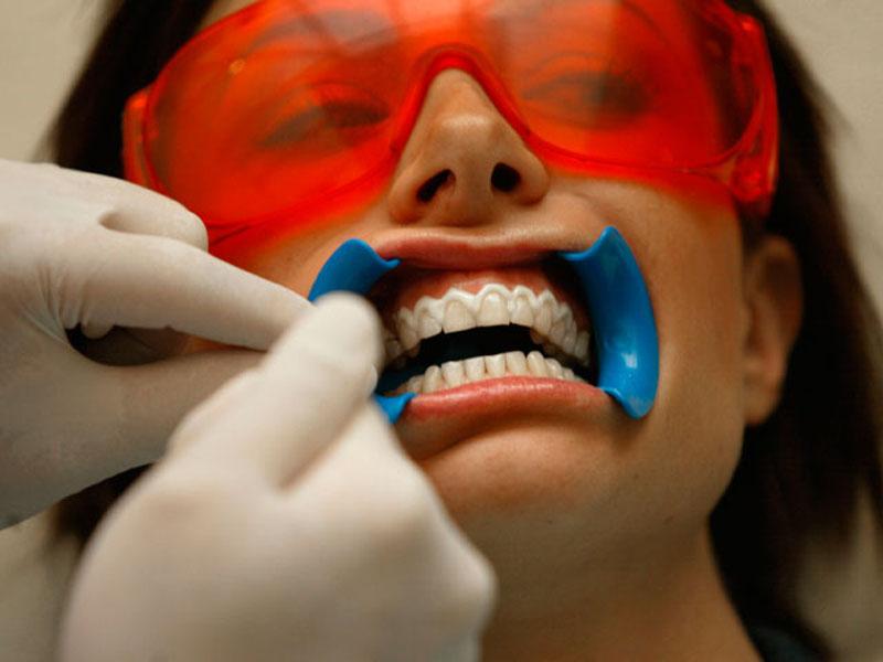 Lasersko izbeljivanje zuba850 din. umesto 6000 din. Opalescence gelovima 3x20 minuta u Laser centru Triniti, Pariski magazin, prvi sprat Novi Sad! Kako izgleda tretman Brite Smile Laserskog beljenja Zuba: 1. Gel za izbeljivanje se pažljivo nanosi na zube 2. Gel se zatim aktivira BriteSmile plavim laserom u trajanju od 20 minuta 3. Proces se ponavlja joscaron dva puta ili pet puta nakon čega iz Laser Centra odlazite sa novim, prirodno belim osmehom!
