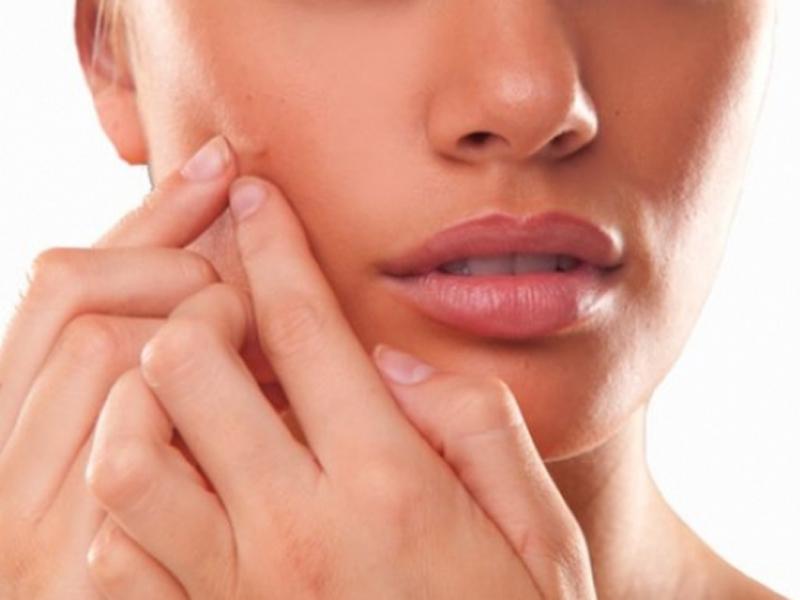 490 din umesto redovne cene od 1200 din. zaTretman uklanjanja mitisera i akni--Vakuumsko čiscaronćenje lica u studiju lepote